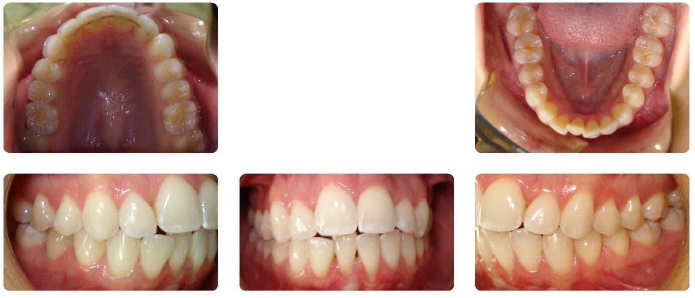 NJ Invisalign Orthodontist - Dr  Nicozisis   Princeton Orthodontics